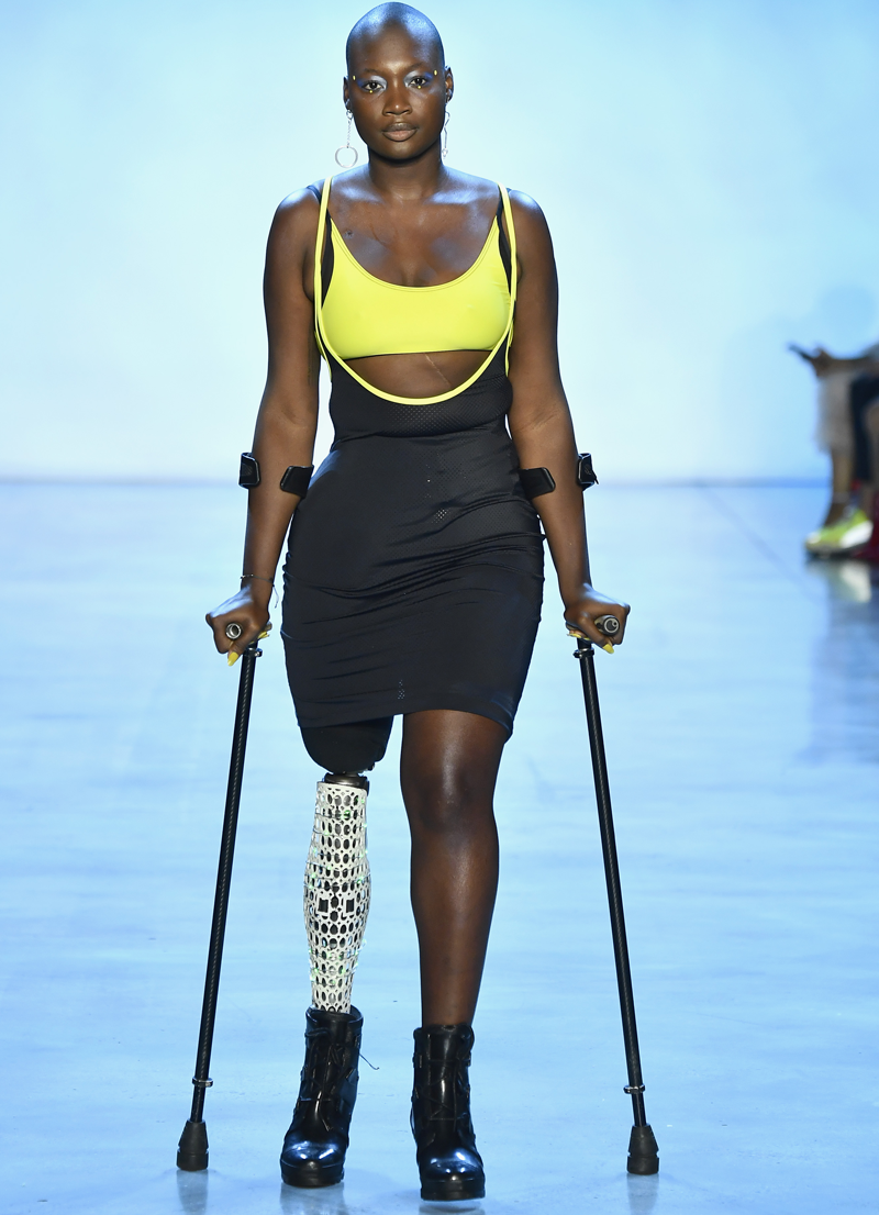 Mama Cax is seen standing with crutches after having her right leg amputated