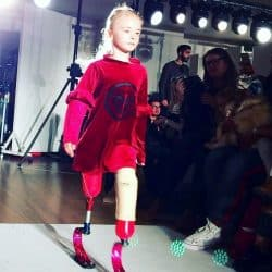 Daisy May walking with prosthetic legs into makeup room before an event