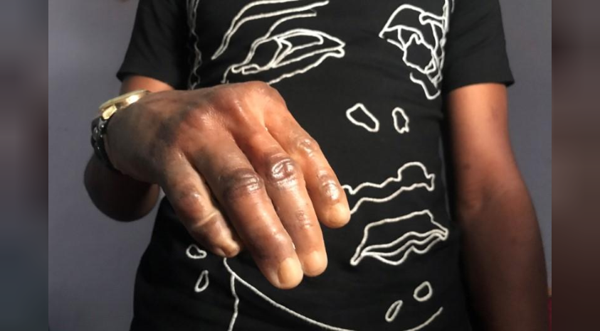 mans hand wearing the lifelike looking dark skin prosthetic